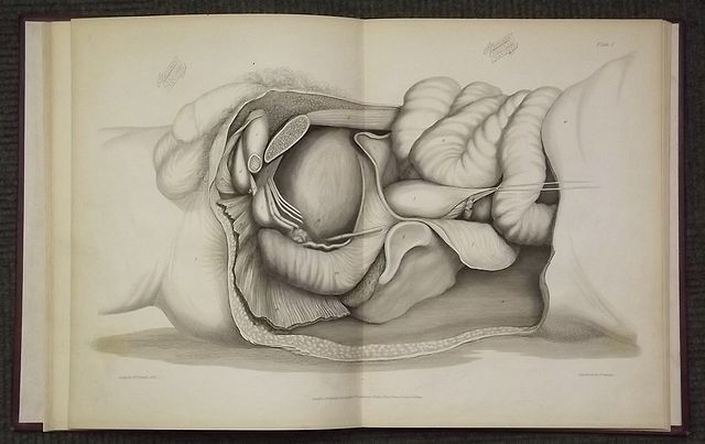 A SHORT TREATISE ON THE SECTION OF THE PROSTATE GLAND IN LITHOTOMY;